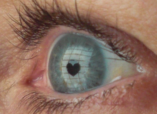 Heart in eye
